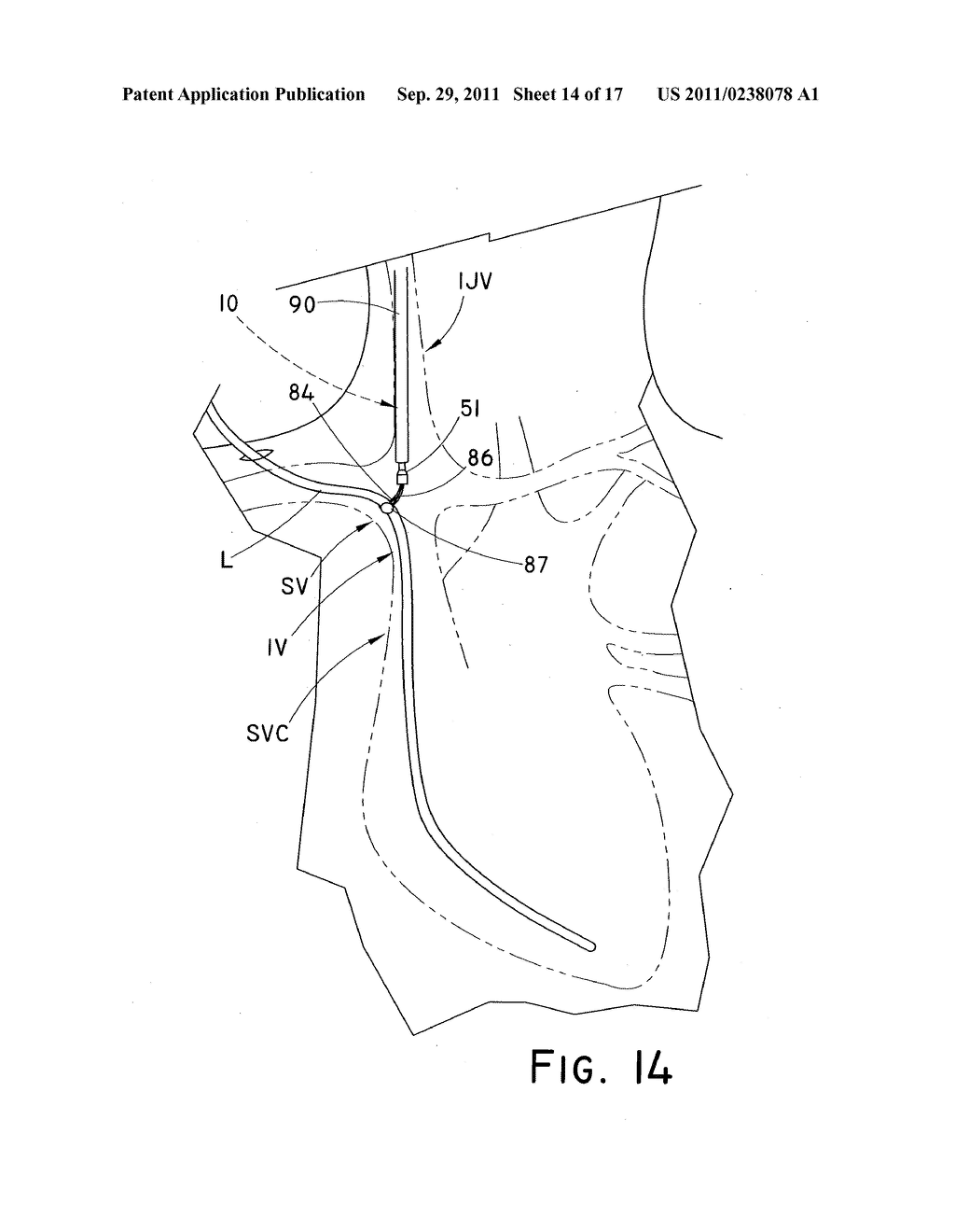 DEVICE AND METHOD FOR POSITIONING AN IMPLANTED STRUCTURE TO FACILITATE     REMOVAL - diagram, schematic, and image 15