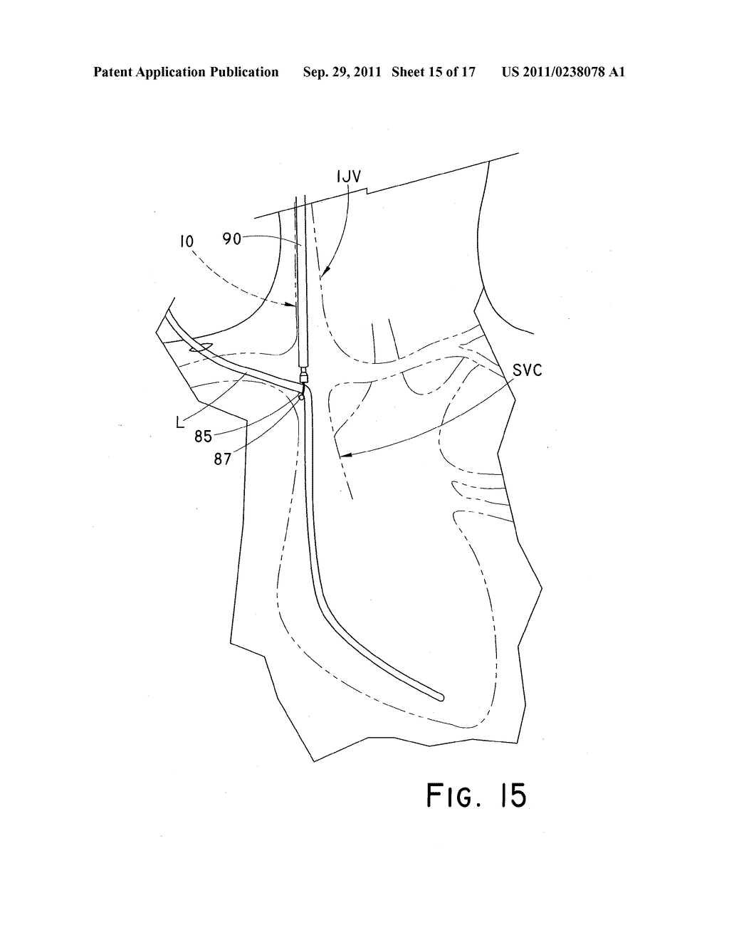 DEVICE AND METHOD FOR POSITIONING AN IMPLANTED STRUCTURE TO FACILITATE     REMOVAL - diagram, schematic, and image 16