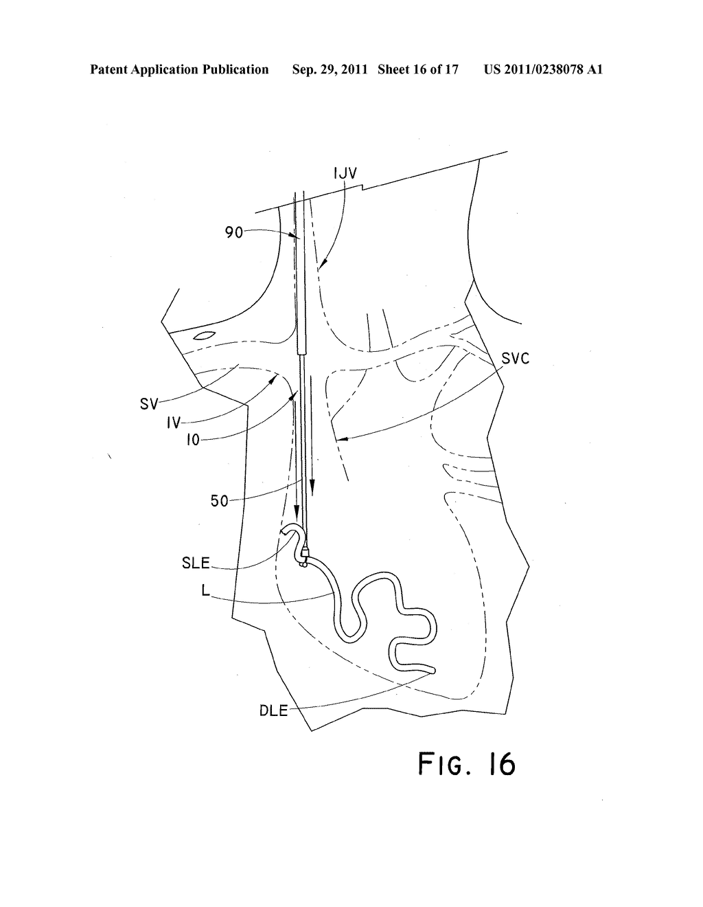 DEVICE AND METHOD FOR POSITIONING AN IMPLANTED STRUCTURE TO FACILITATE     REMOVAL - diagram, schematic, and image 17