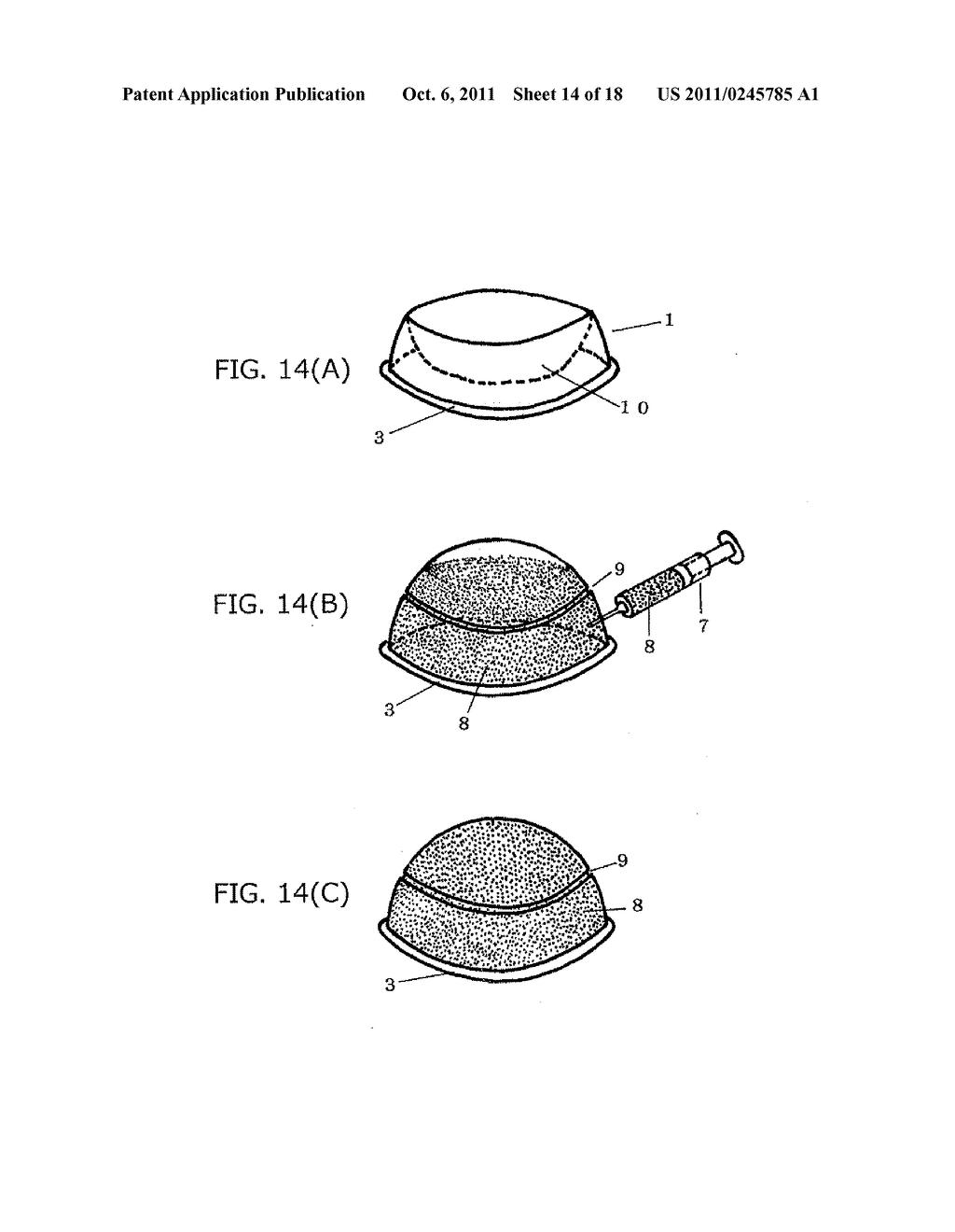 simple device for treating tinea unguium - diagram, schematic, and image 15