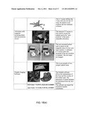 ASSISTED DENTAL IMPLANT TREATMENT AND REPLICATION SYSTEM diagram and image