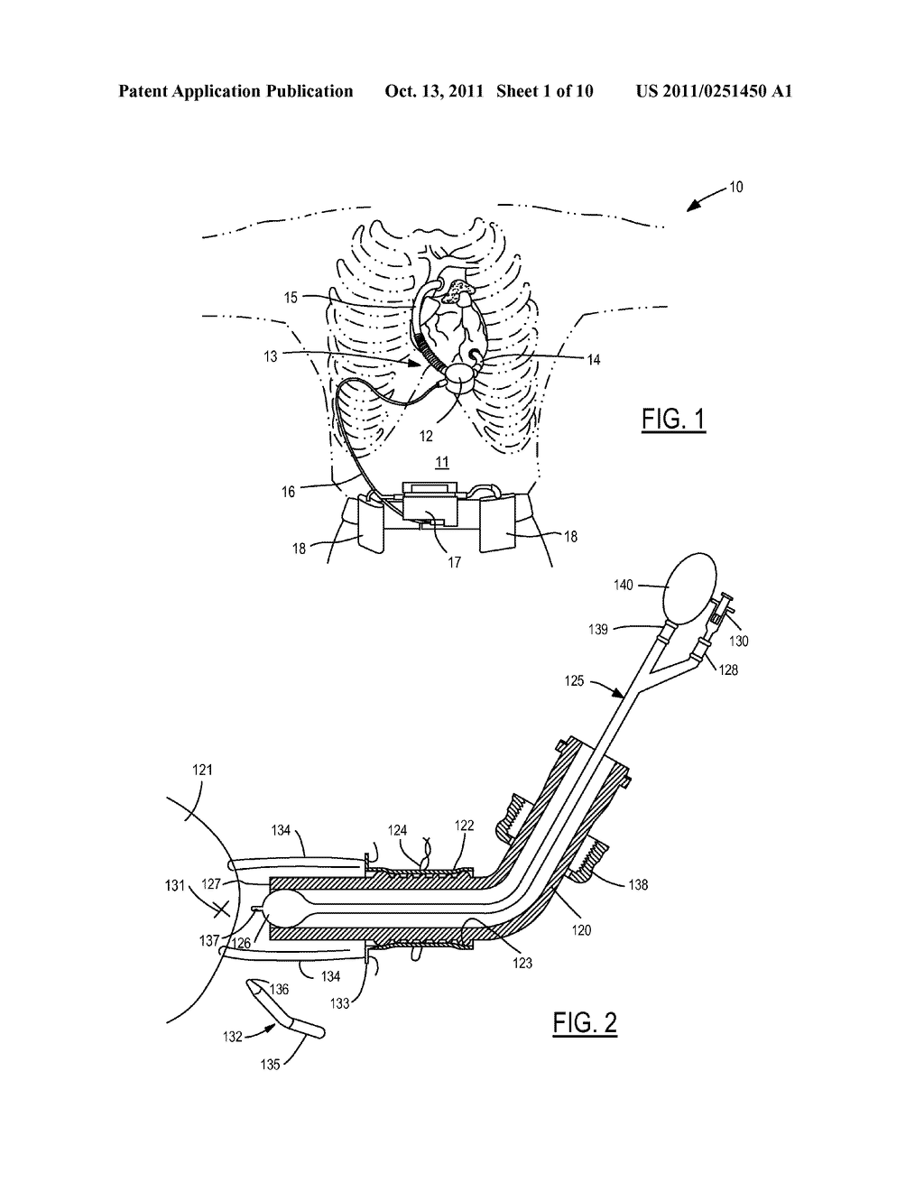 Method and Device for Attachment of an Inflow Conduit to the Heart and to     a Pump - diagram, schematic, and image 02