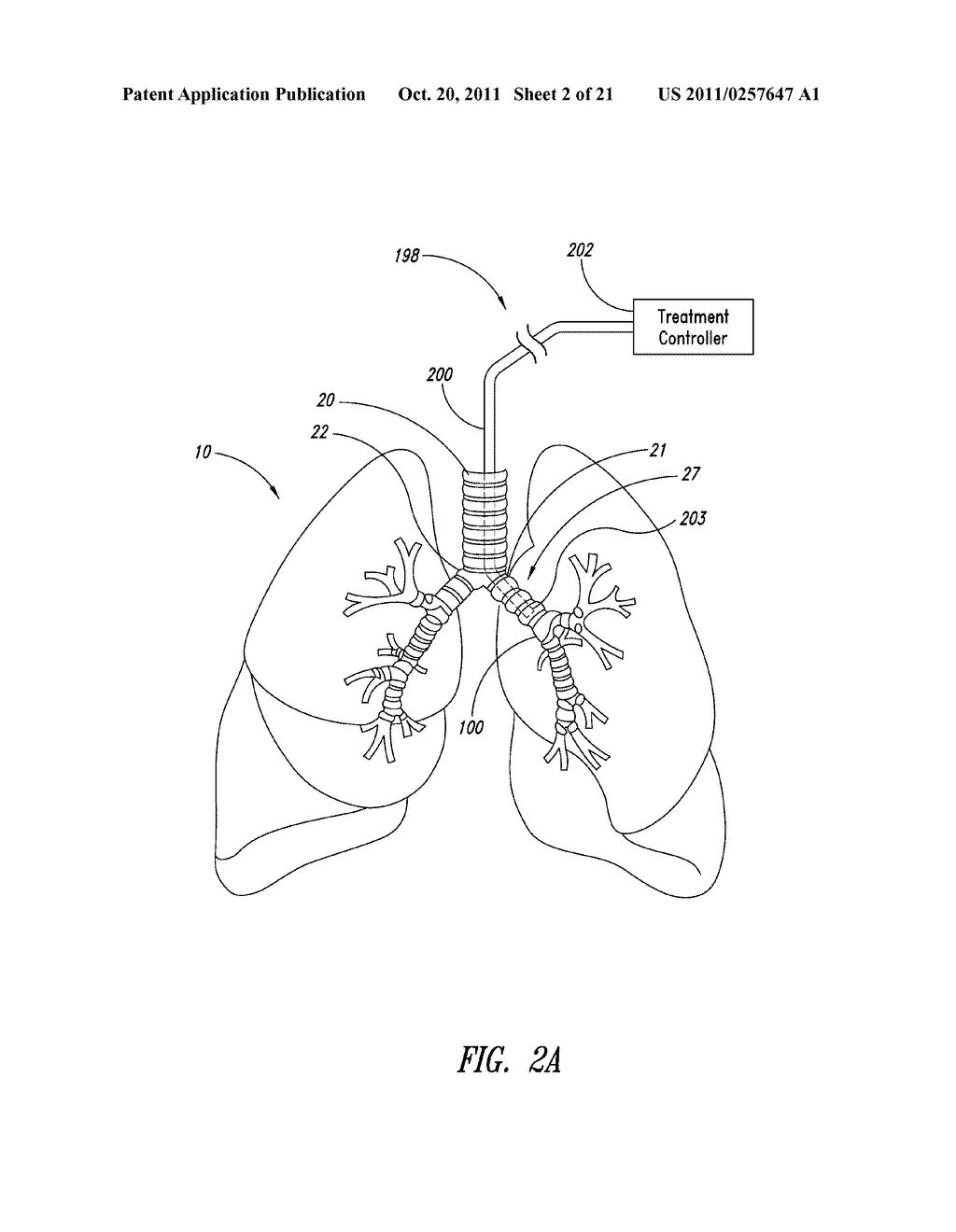 bronchial tree diagram
