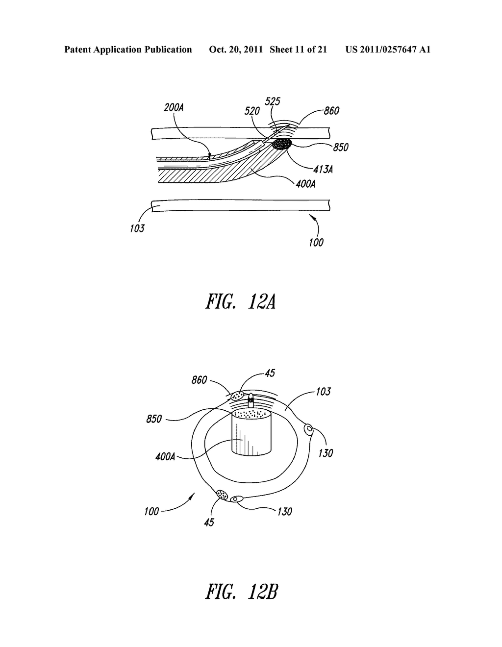 SYSTEMS, ASSEMBLIES, AND METHODS FOR TREATING A BRONCHIAL TREE - diagram, schematic, and image 12