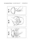 SOFT PROSTHETIC IMPLANT MANUFACTURING PROCESS diagram and image