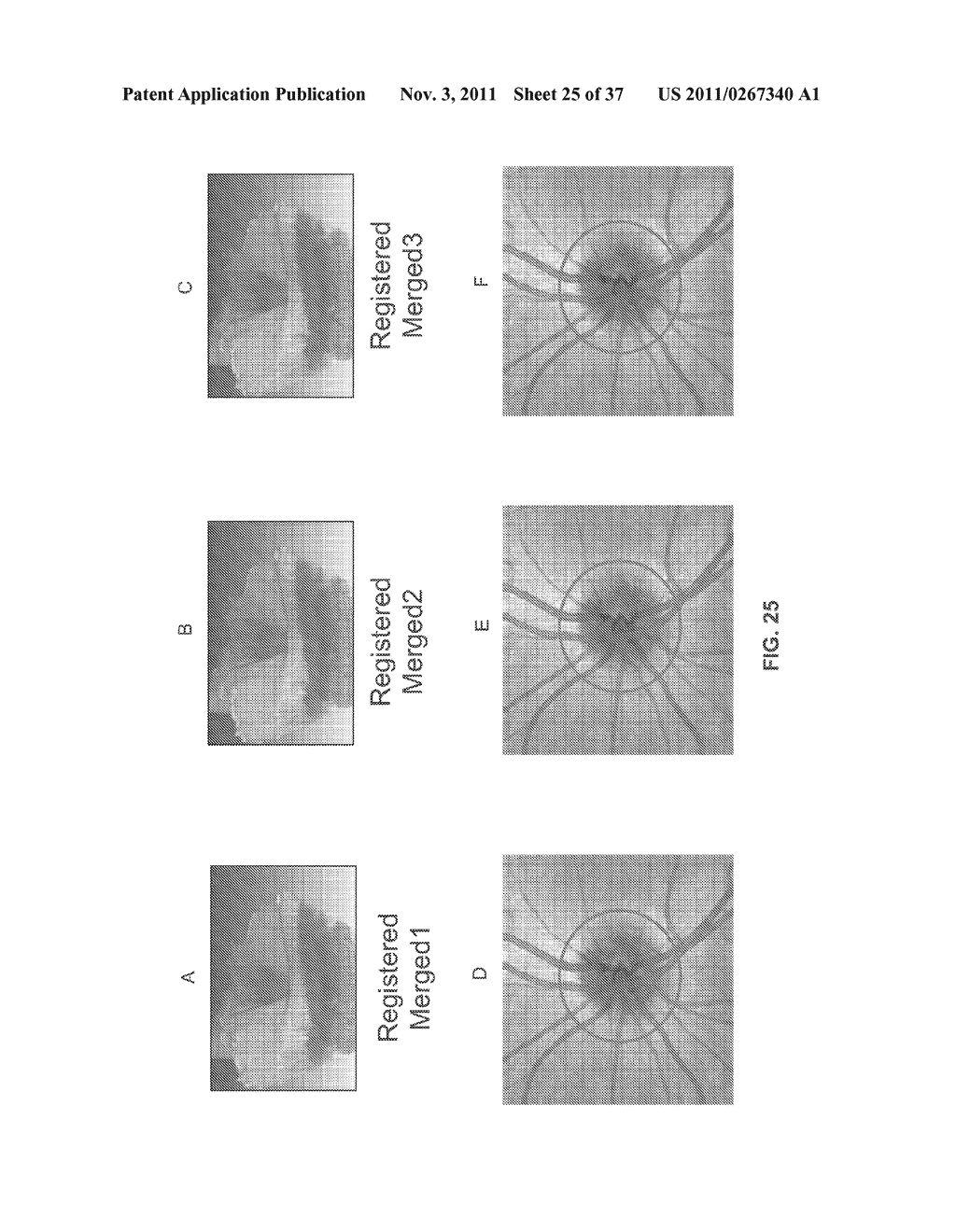 METHOD AND APPARATUS FOR MOTION CORRECTION AND IMAGE ENHANCEMENT FOR     OPTICAL COHERENCE TOMOGRAPHY - diagram, schematic, and image 26