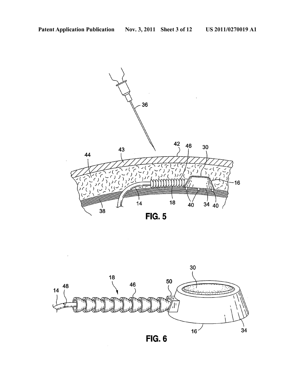 IMPLANTABLE DEVICE TO PROTECT TUBING FROM PUNCTURE - diagram, schematic, and image 04