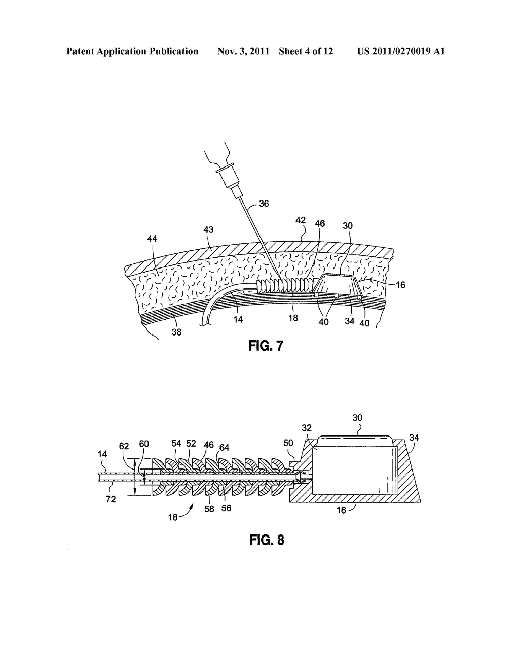 IMPLANTABLE DEVICE TO PROTECT TUBING FROM PUNCTURE - diagram, schematic, and image 05
