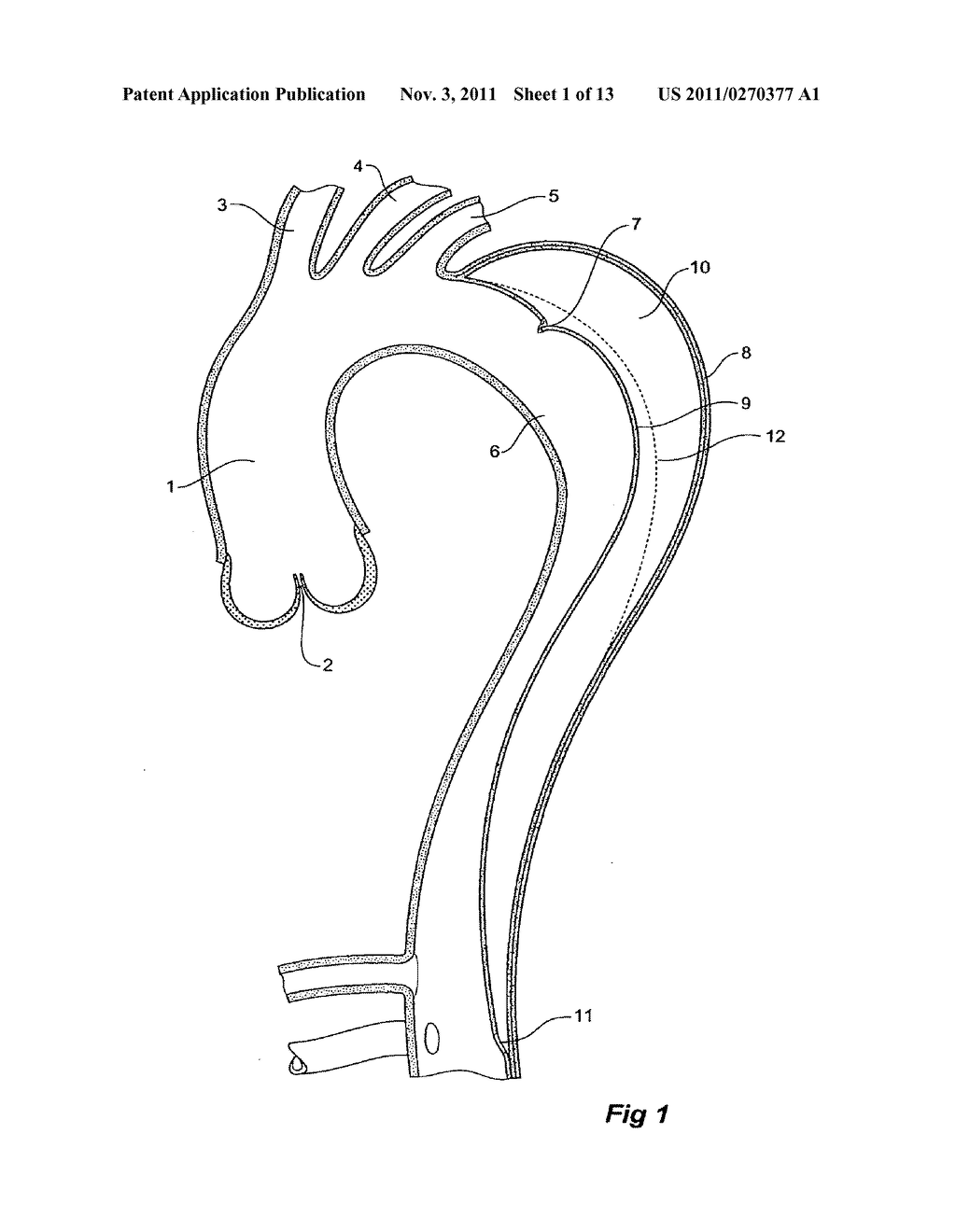 DEVICE FOR TREATING AORTIC DISSECTION - diagram, schematic, and image 02
