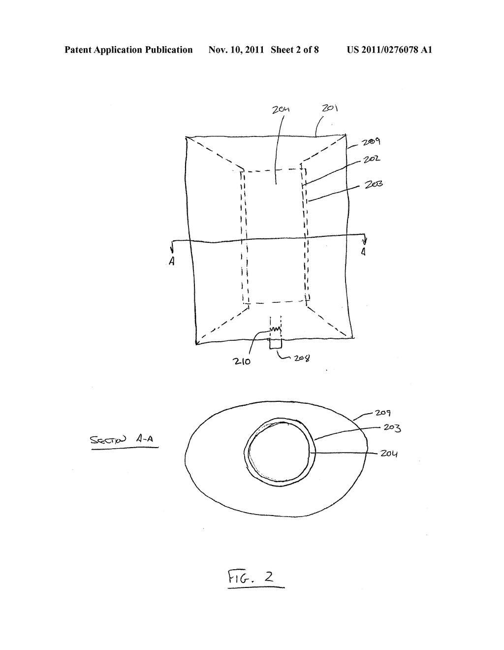FILLING STRUCTURE FOR A GRAFT SYSTEM AND METHODS OF USE - diagram, schematic, and image 03