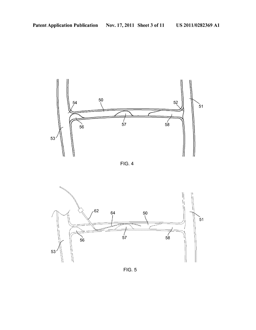 APPARATUS AND METHODS FOR ACCESSING AND REMOVING MATERIAL FROM BODY LUMENS - diagram, schematic, and image 04