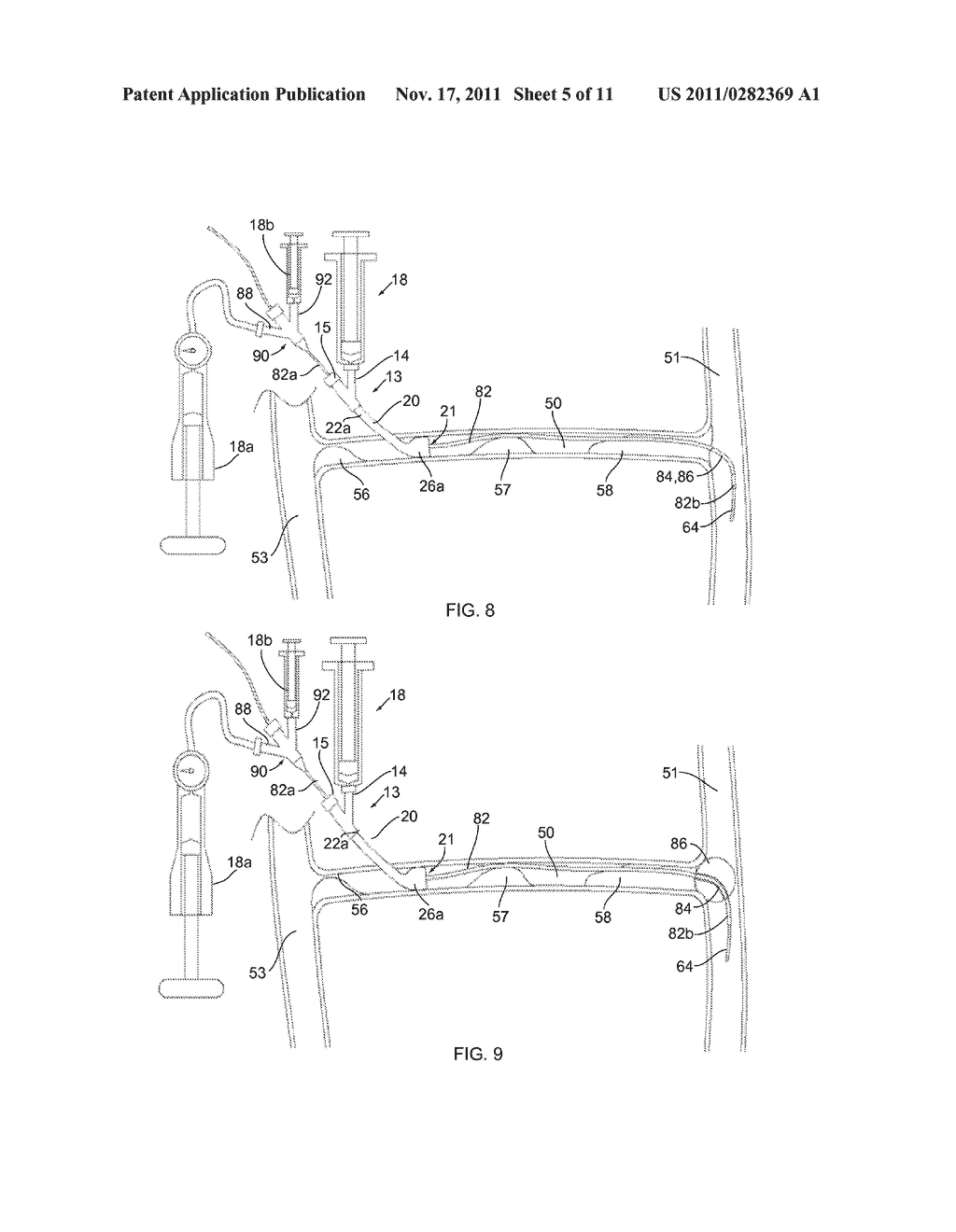 APPARATUS AND METHODS FOR ACCESSING AND REMOVING MATERIAL FROM BODY LUMENS - diagram, schematic, and image 06