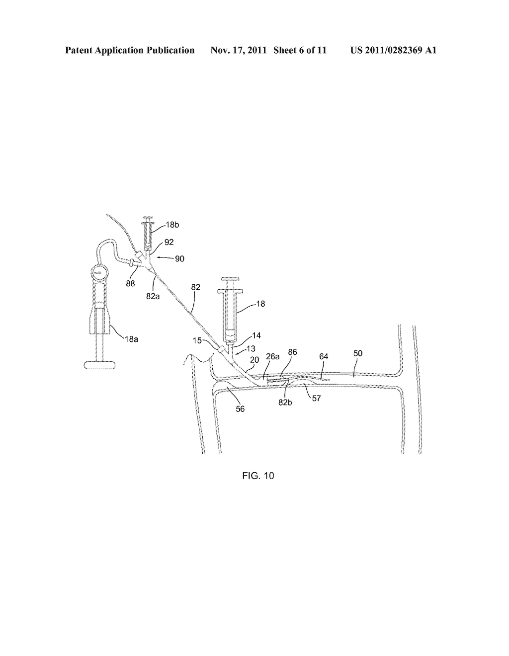 APPARATUS AND METHODS FOR ACCESSING AND REMOVING MATERIAL FROM BODY LUMENS - diagram, schematic, and image 07