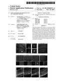 OPTICAL METHOD FOR THE DETECTION OF ALZHEIMER S DISEASE diagram and image