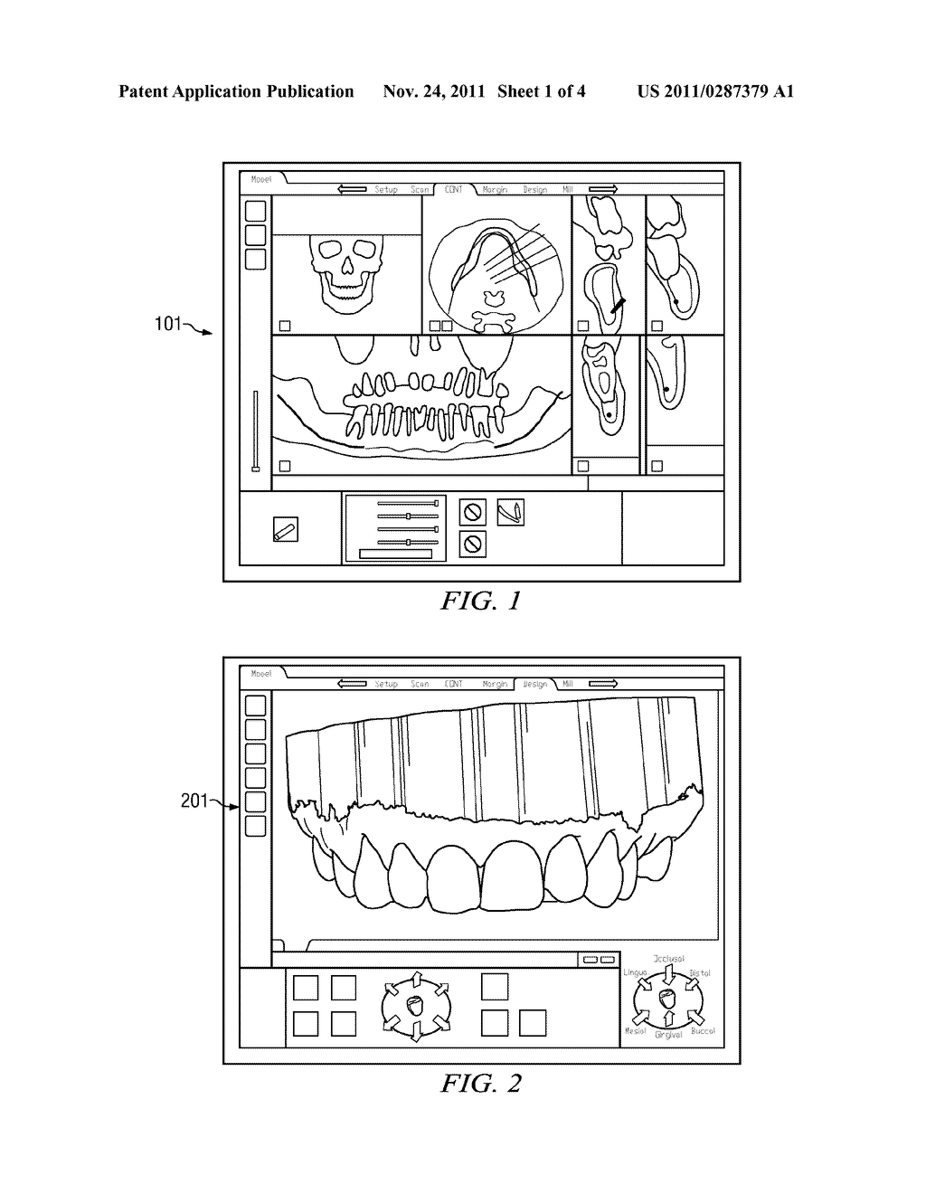 Display method and system for enabling an operator to visualize and     correct alignment errors in imaged data sets - diagram, schematic, and image 02