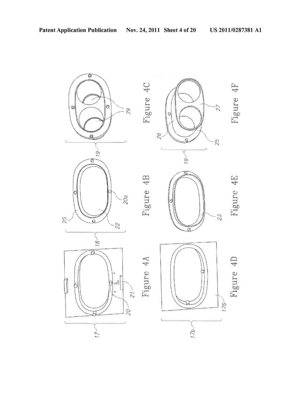 SYSTEM, METHOD AND APPARATUS FOR IMPLEMENTING DENTAL IMPLANTS - diagram, schematic, and image 05