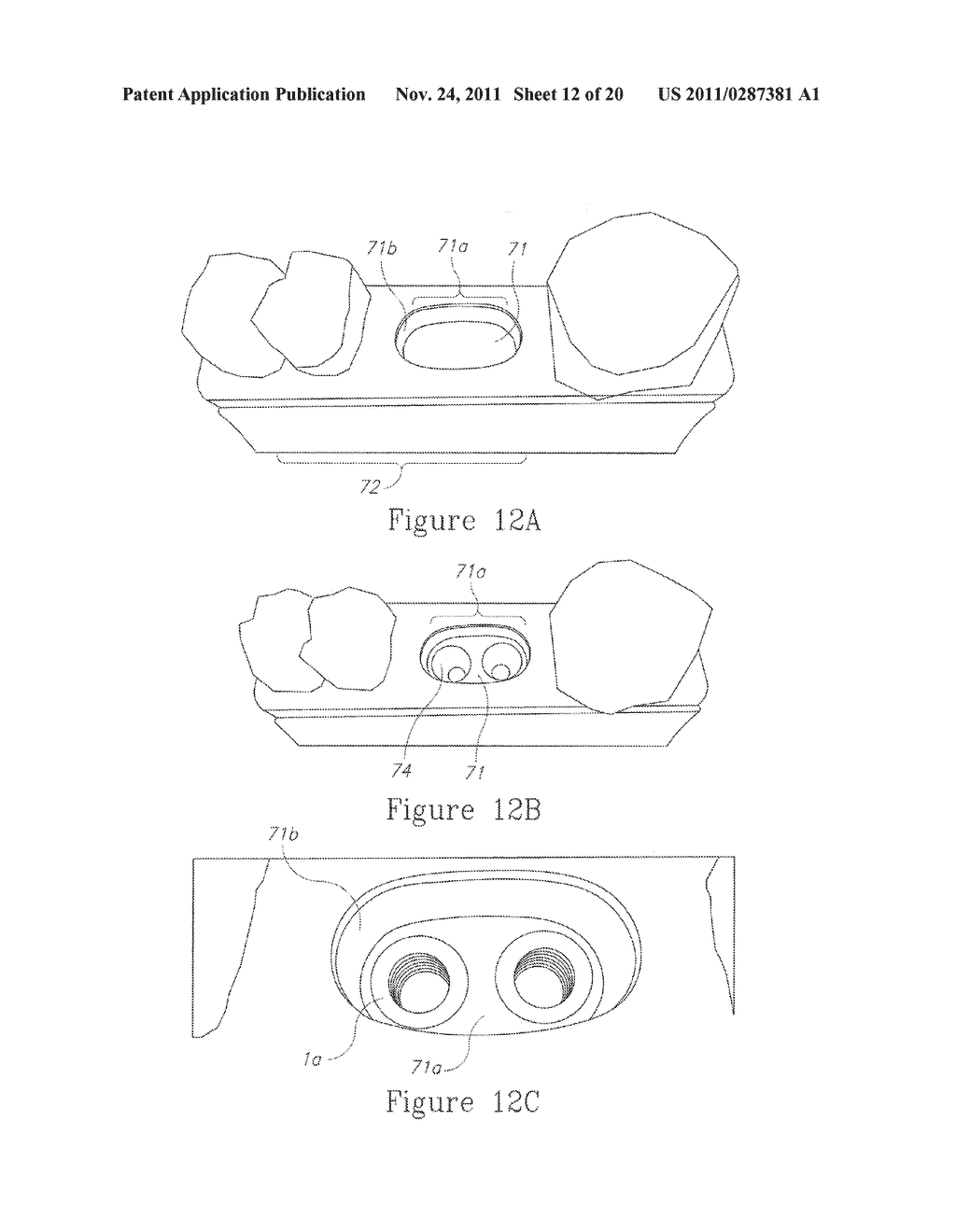 SYSTEM, METHOD AND APPARATUS FOR IMPLEMENTING DENTAL IMPLANTS - diagram, schematic, and image 13