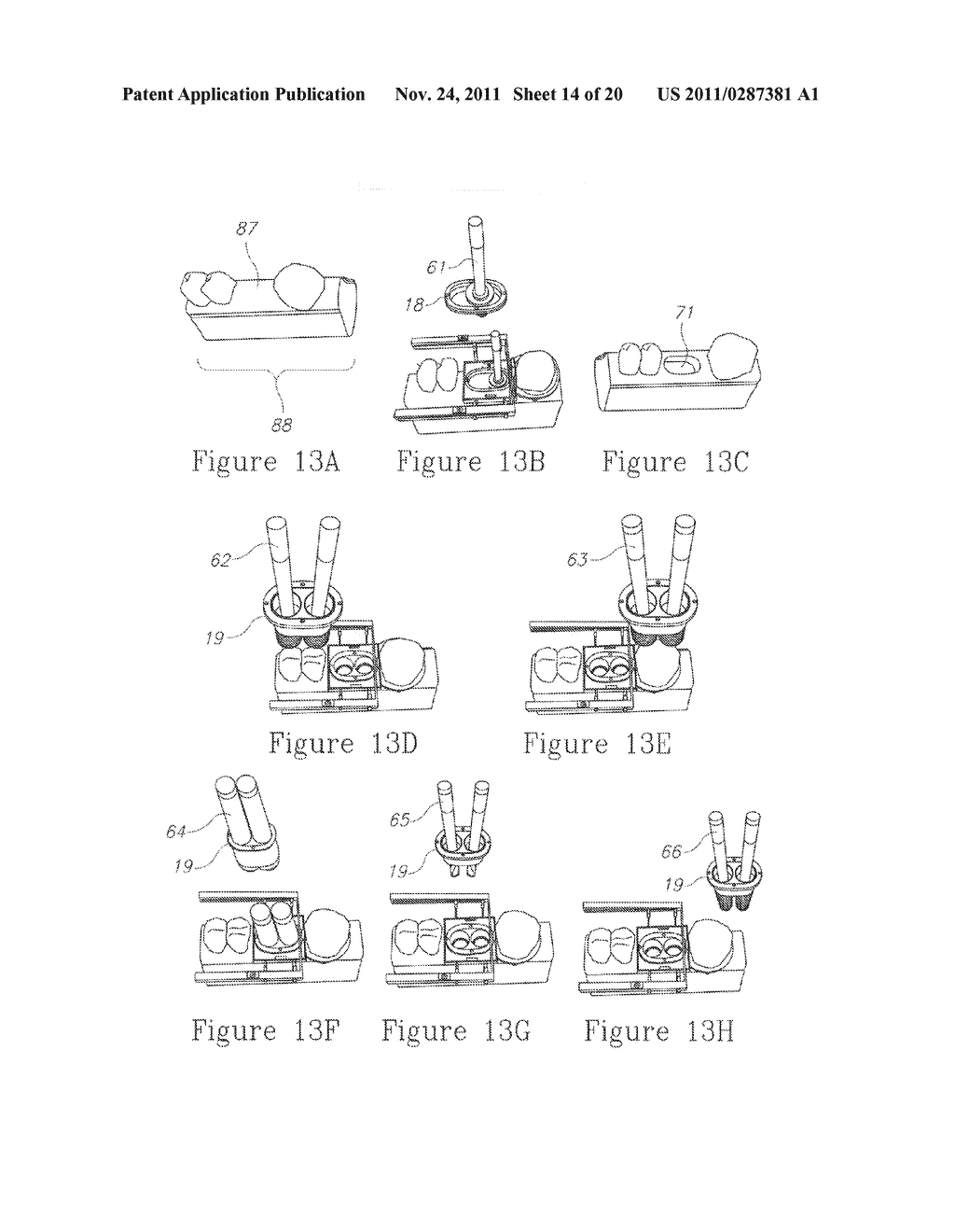 SYSTEM, METHOD AND APPARATUS FOR IMPLEMENTING DENTAL IMPLANTS - diagram, schematic, and image 15