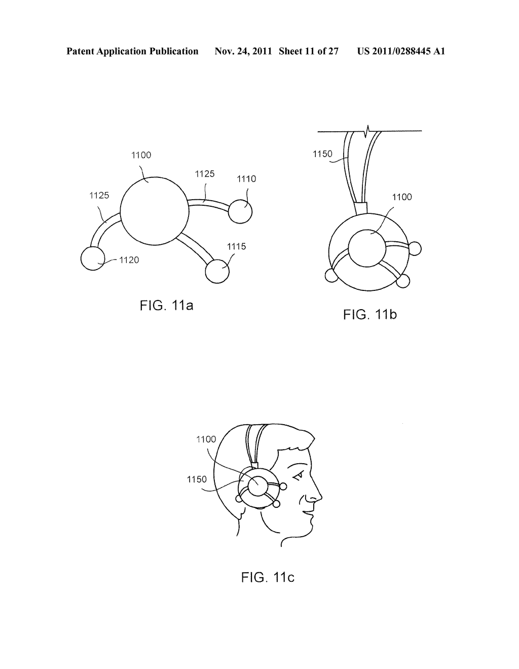 SYSTEMS AND METHODS FOR REDUCING SUBCONSCIOUS NEUROMUSCULAR TENSION     INCLUDING BRUXISM - diagram, schematic, and image 12