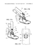 ORTHOPEDIC DEVICE PROVIDING ACCESS TO WOUND SITE diagram and image