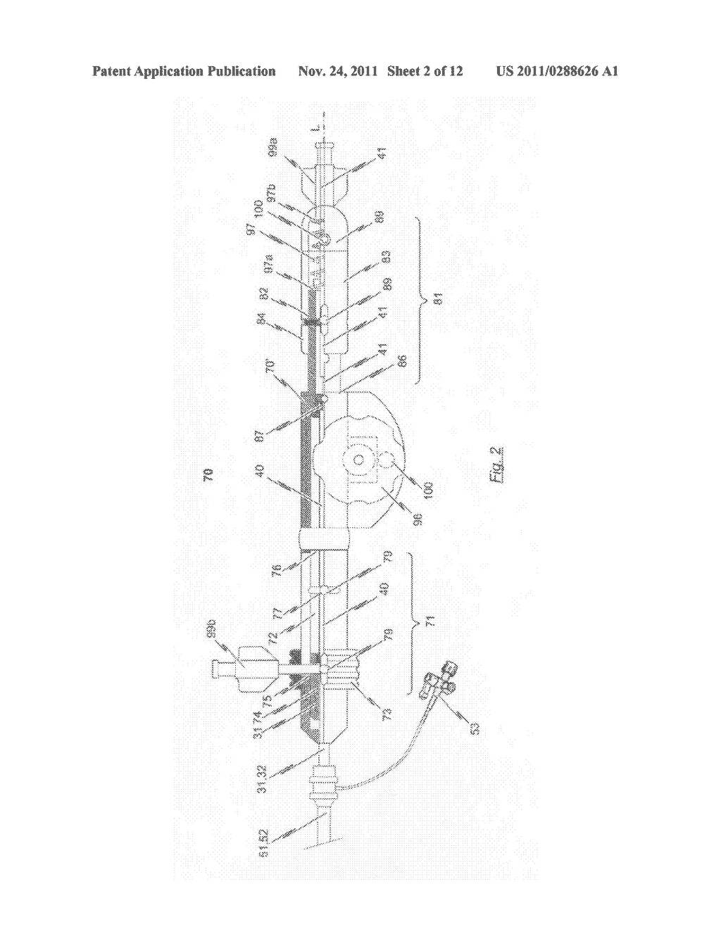 Catheter system for introducing an expandable heart valve stent into the     body of a patient, insertion system with a catheter system and medical     device for treatment of a heart valve defect - diagram, schematic, and image 03