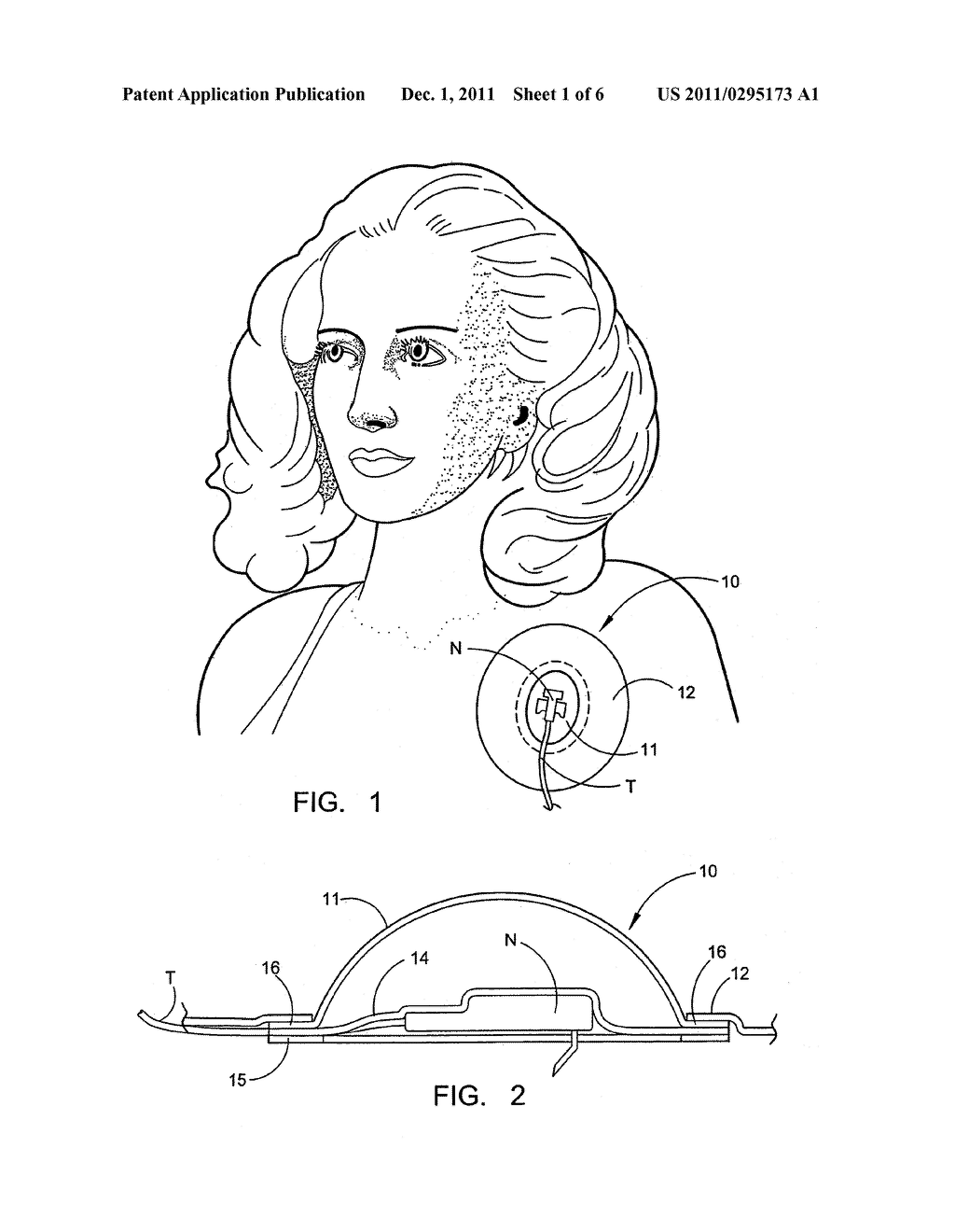 PROTECTIVE DRESSING AND METHODS OF USE THEREOF - diagram, schematic, and image 02