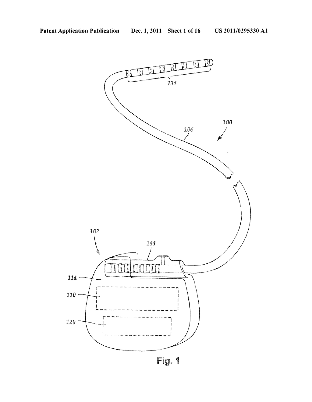 ANCHORING UNITS FOR LEADS OF IMPLANTABLE ELECTRIC STIMULATION SYSTEMS AND     METHODS OF MAKING AND USING - diagram, schematic, and image 02