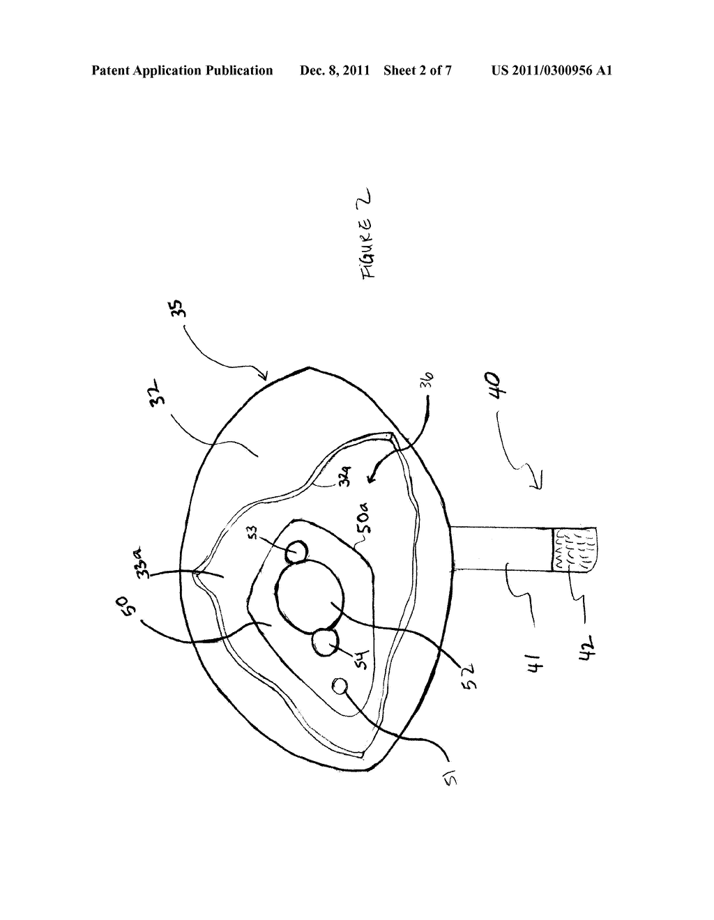 Swimming Hoop With Adjustable Buoyancy Member - diagram, schematic, and image 03