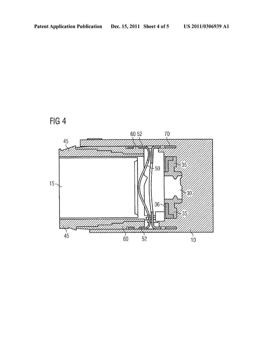 DRUG DELIVERY DEVICE AND METHOD OF MANUFACTURING A DRUG DELIVERY DEVICE - diagram, schematic, and image 05