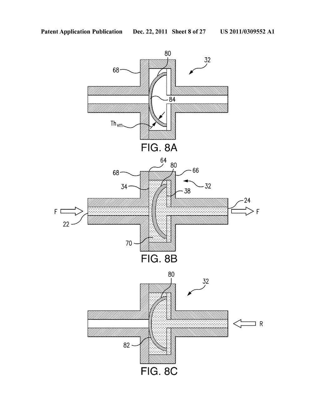Method of Making a Membrane for Use with a Flow Control System for a     Micropump - diagram, schematic, and image 09