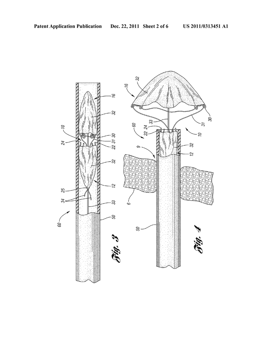 CLOSURE DEVICE WITH STRING RETRACTABLE UMBRELLA AND METHOD FOR CLOSING A     BODY OPENING WITH THE SAME - diagram, schematic, and image 03