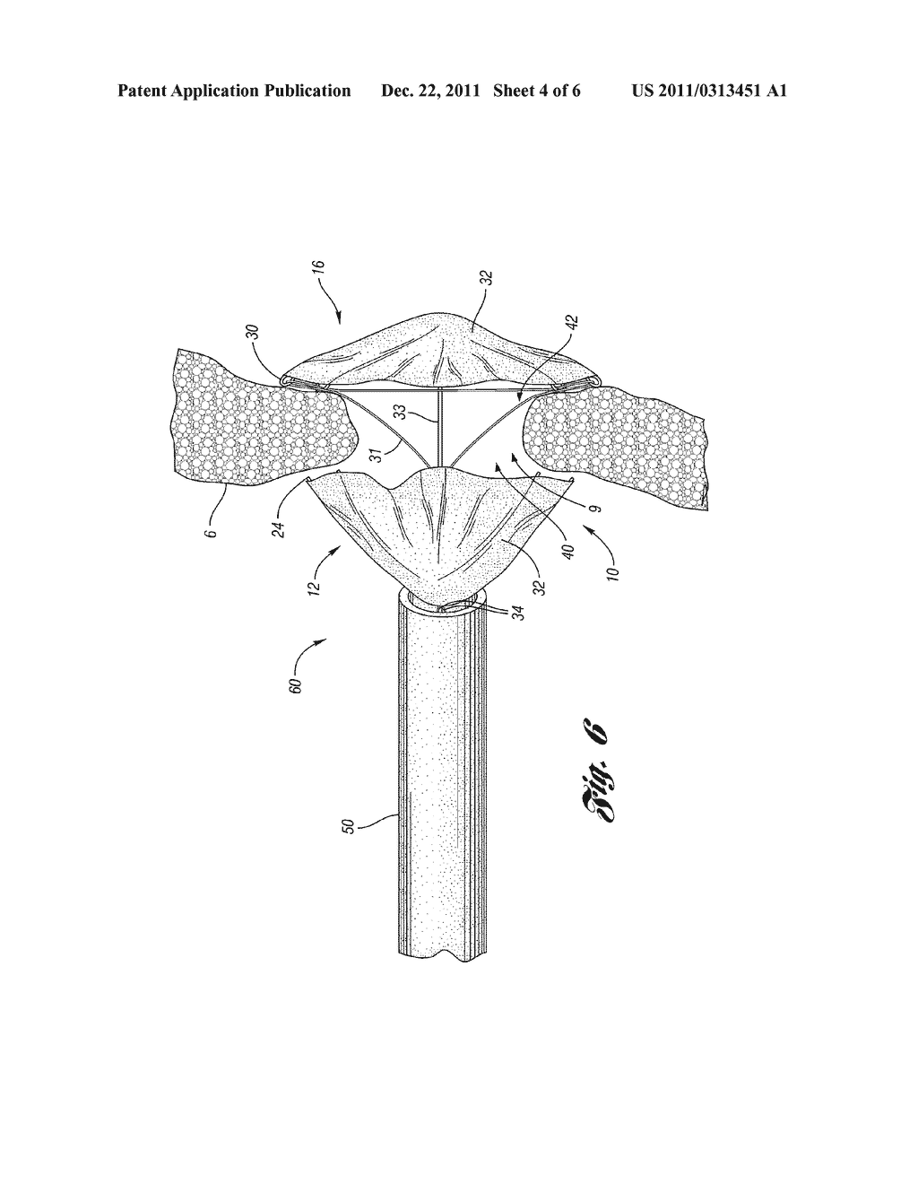 CLOSURE DEVICE WITH STRING RETRACTABLE UMBRELLA AND METHOD FOR CLOSING A     BODY OPENING WITH THE SAME - diagram, schematic, and image 05