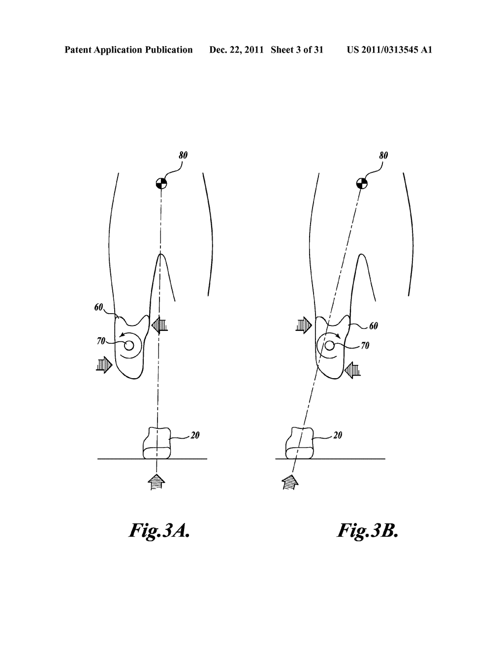 METHOD FOR ALIGNING A PROSTHESIS - diagram, schematic, and image 04