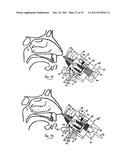 NASAL DELIVERY diagram and image