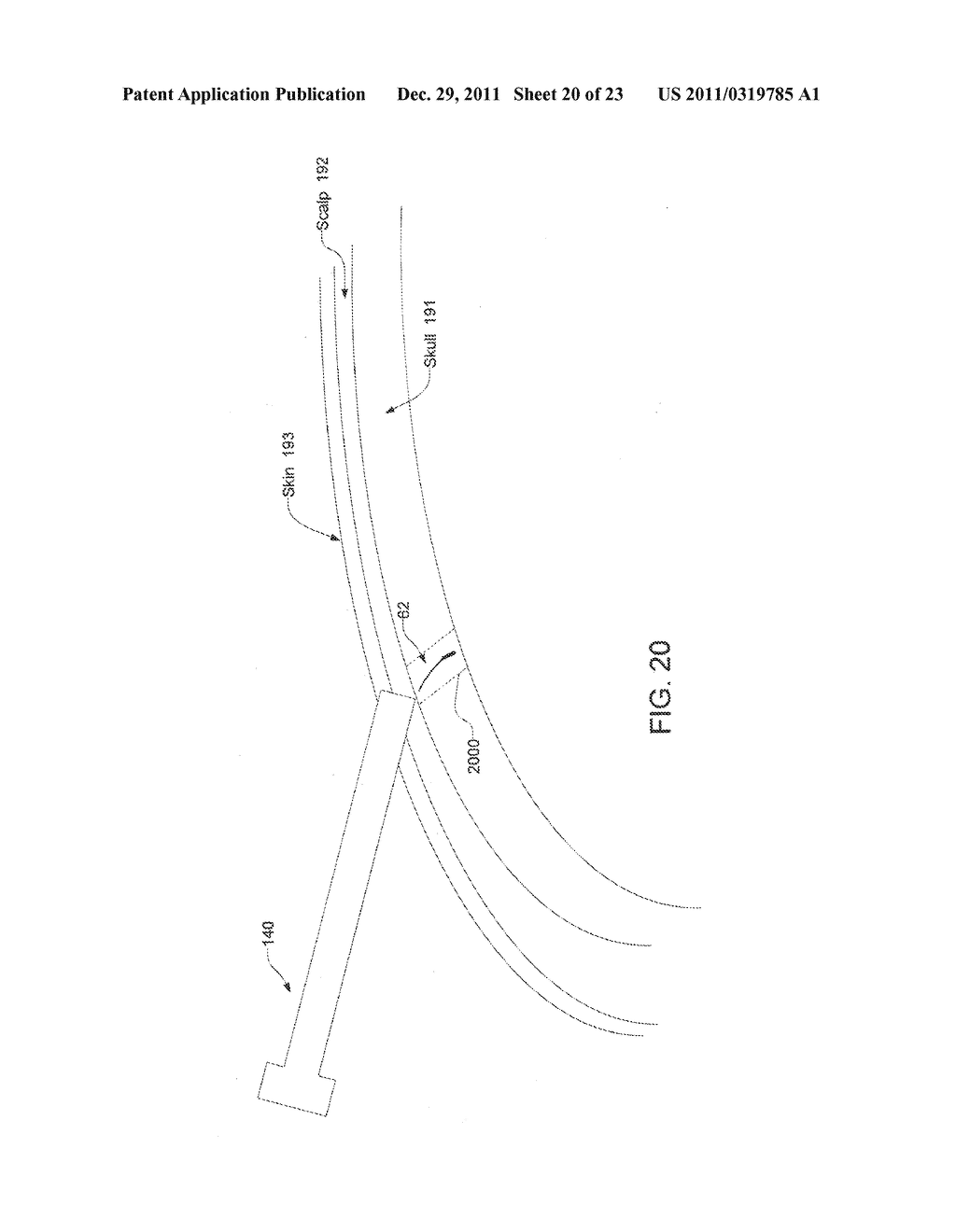 Implantable Systems and Methods for Identifying a Contra-ictal Condition     in a Subject - diagram, schematic, and image 21