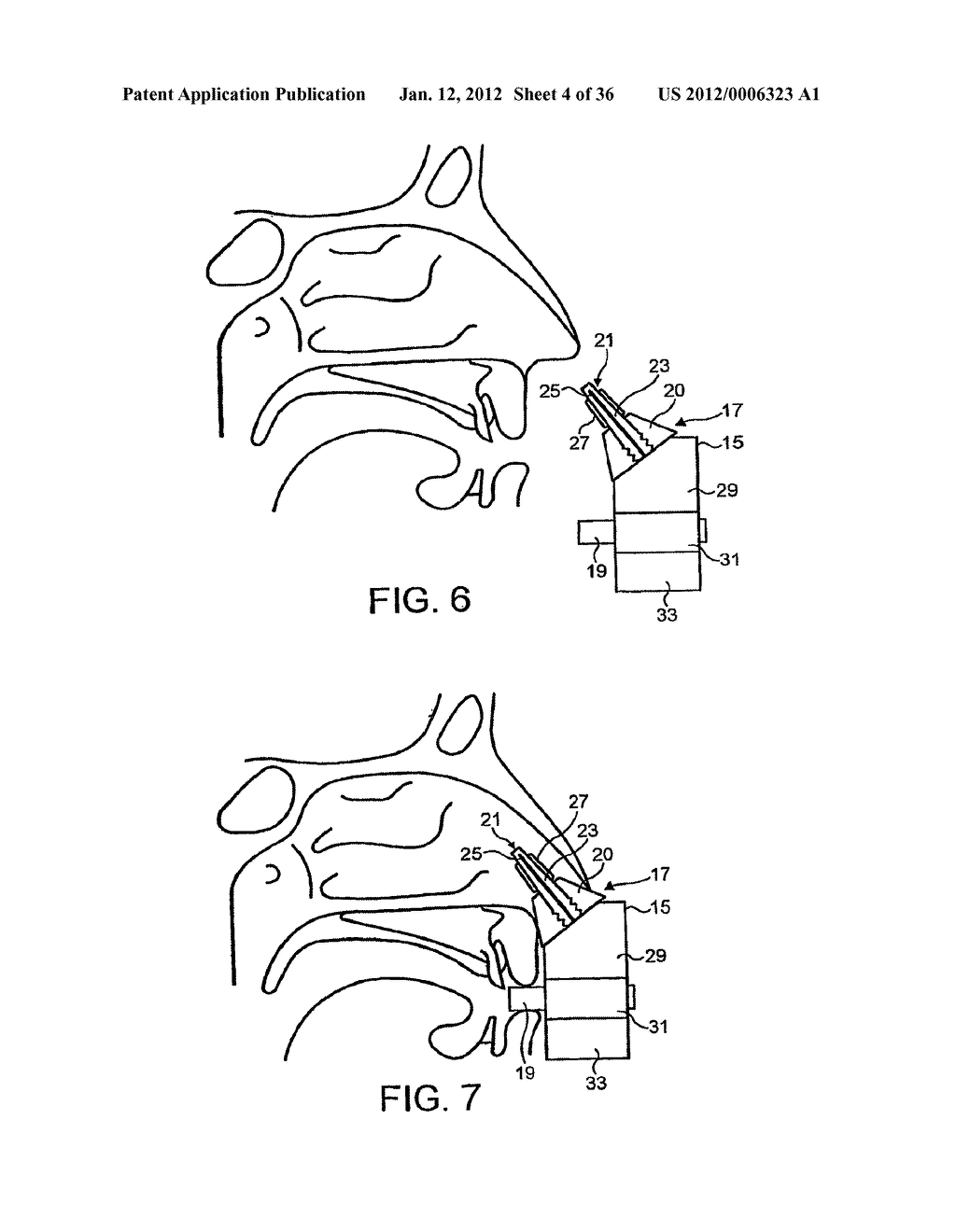 NASAL DEVICES - diagram, schematic, and image 05