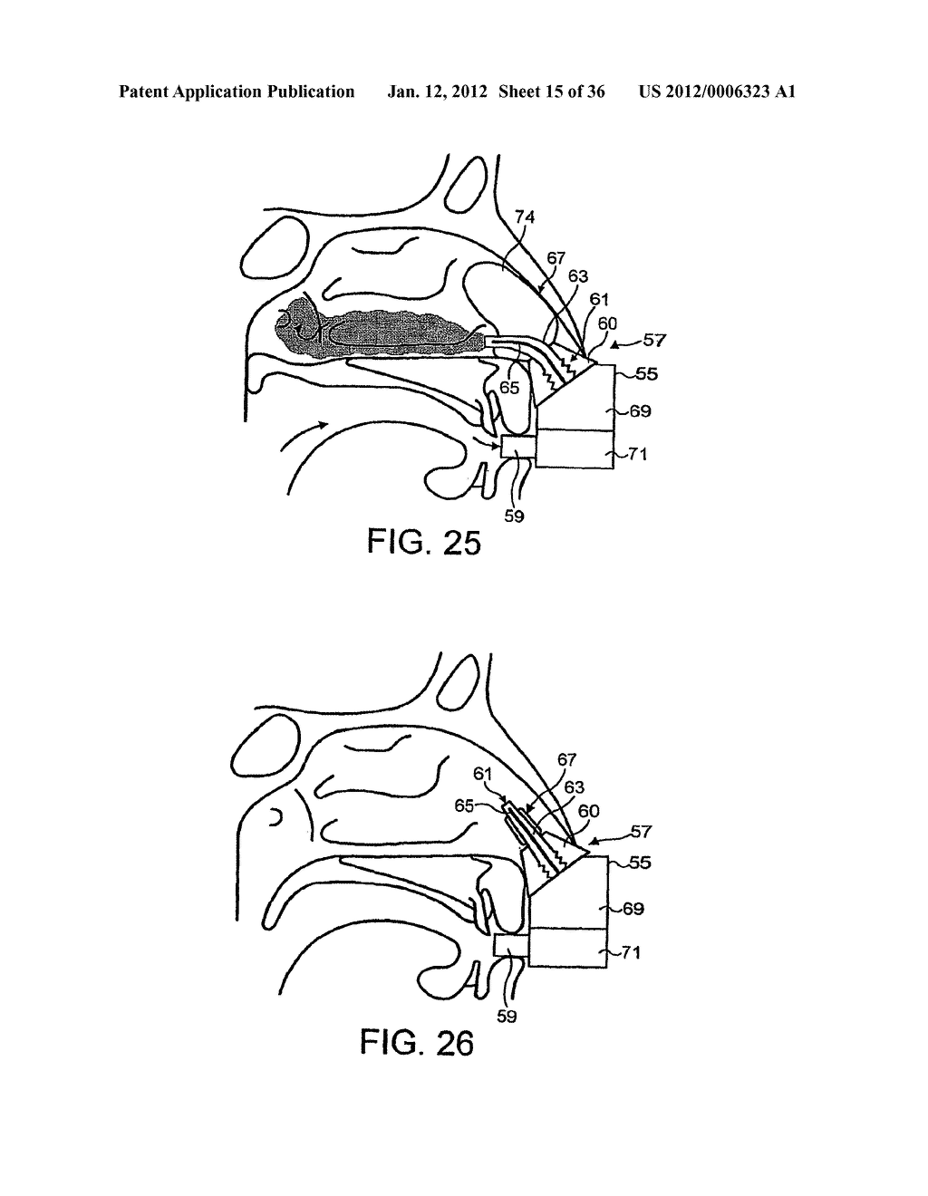 NASAL DEVICES - diagram, schematic, and image 16