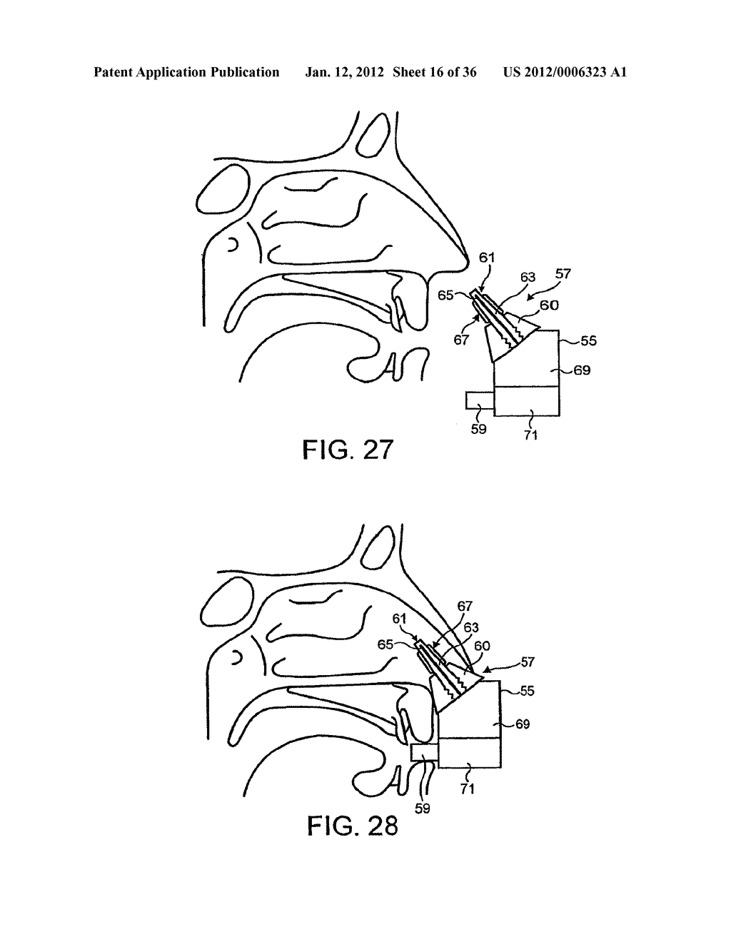 NASAL DEVICES - diagram, schematic, and image 17