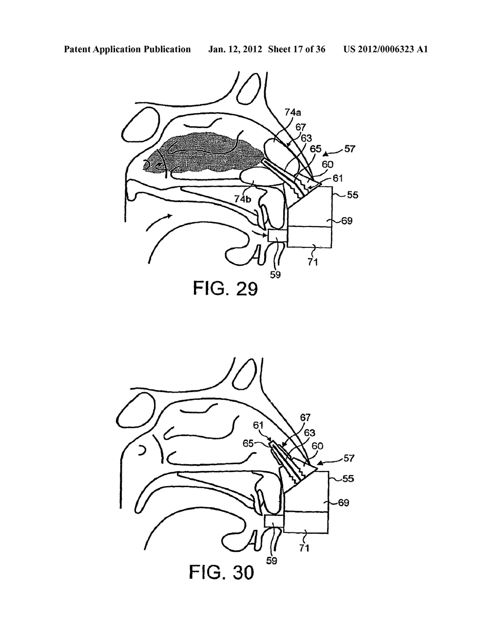 NASAL DEVICES - diagram, schematic, and image 18