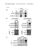 TBC1D7 AS TUMOR MARKER AND THERAPEUTIC TARGET FOR CANCER diagram and image