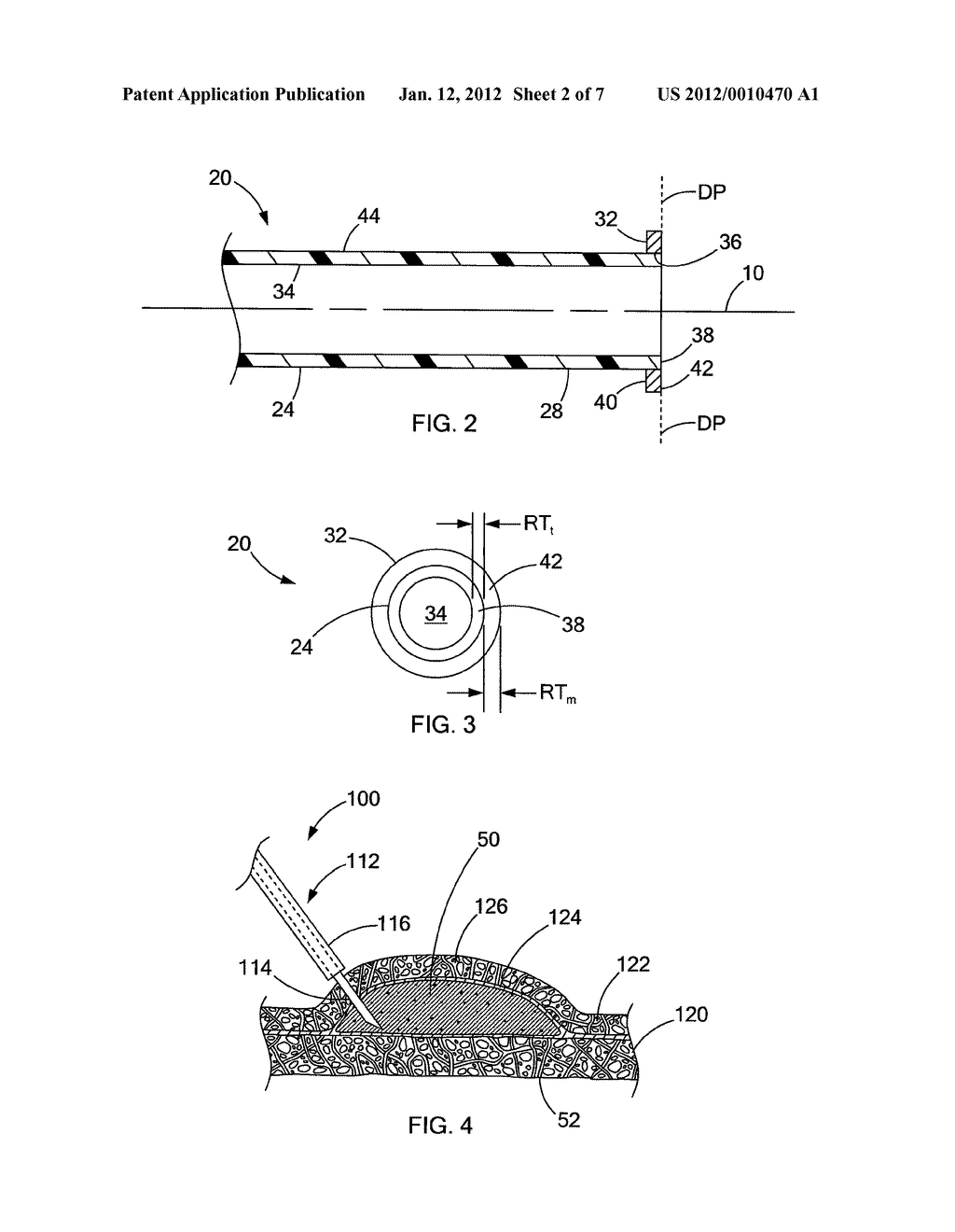 DEVICES AND METHODS FOR ANCHORING A TUBE - diagram, schematic, and image 03