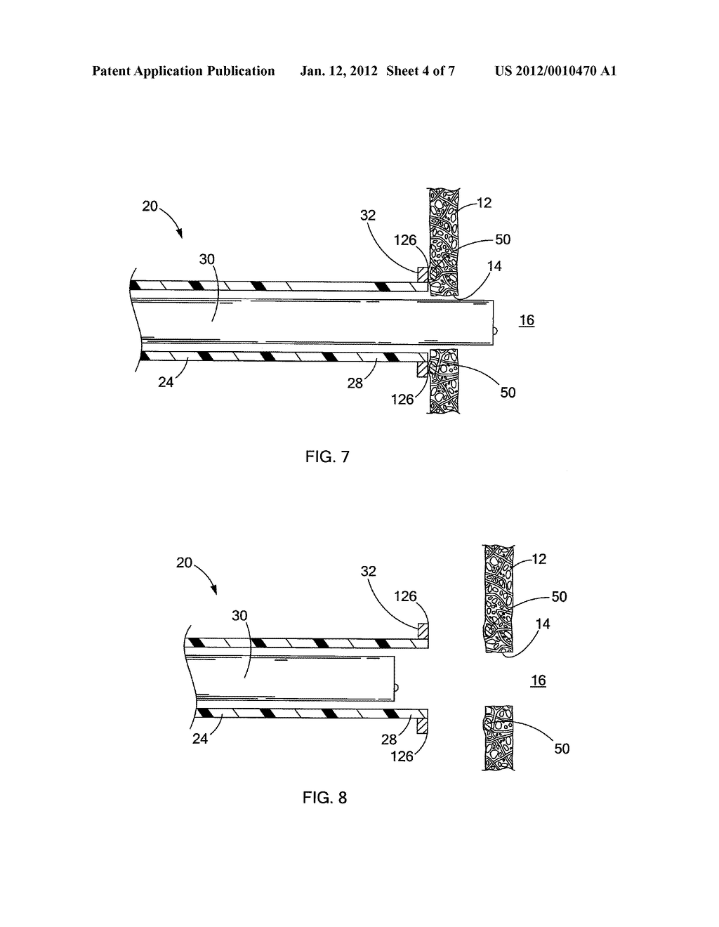 DEVICES AND METHODS FOR ANCHORING A TUBE - diagram, schematic, and image 05
