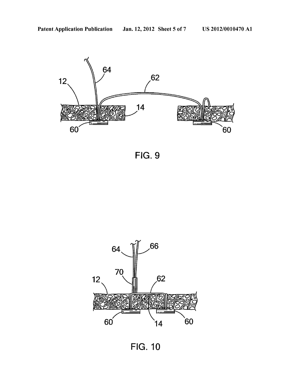 DEVICES AND METHODS FOR ANCHORING A TUBE - diagram, schematic, and image 06