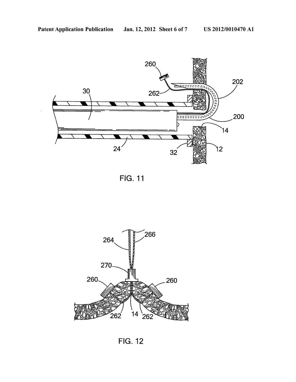 DEVICES AND METHODS FOR ANCHORING A TUBE - diagram, schematic, and image 07
