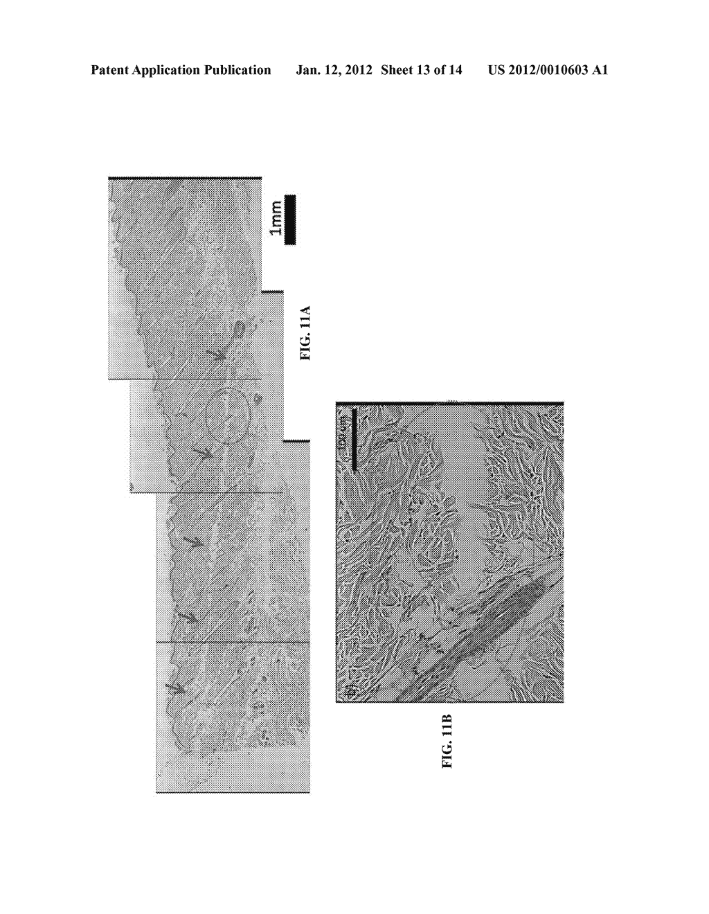 TISSUE OPTICAL CLEARING DEVICES FOR SUBSURFACE LIGHT-INDUCED PHASE-CHANGE     AND METHOD OF USE - diagram, schematic, and image 14