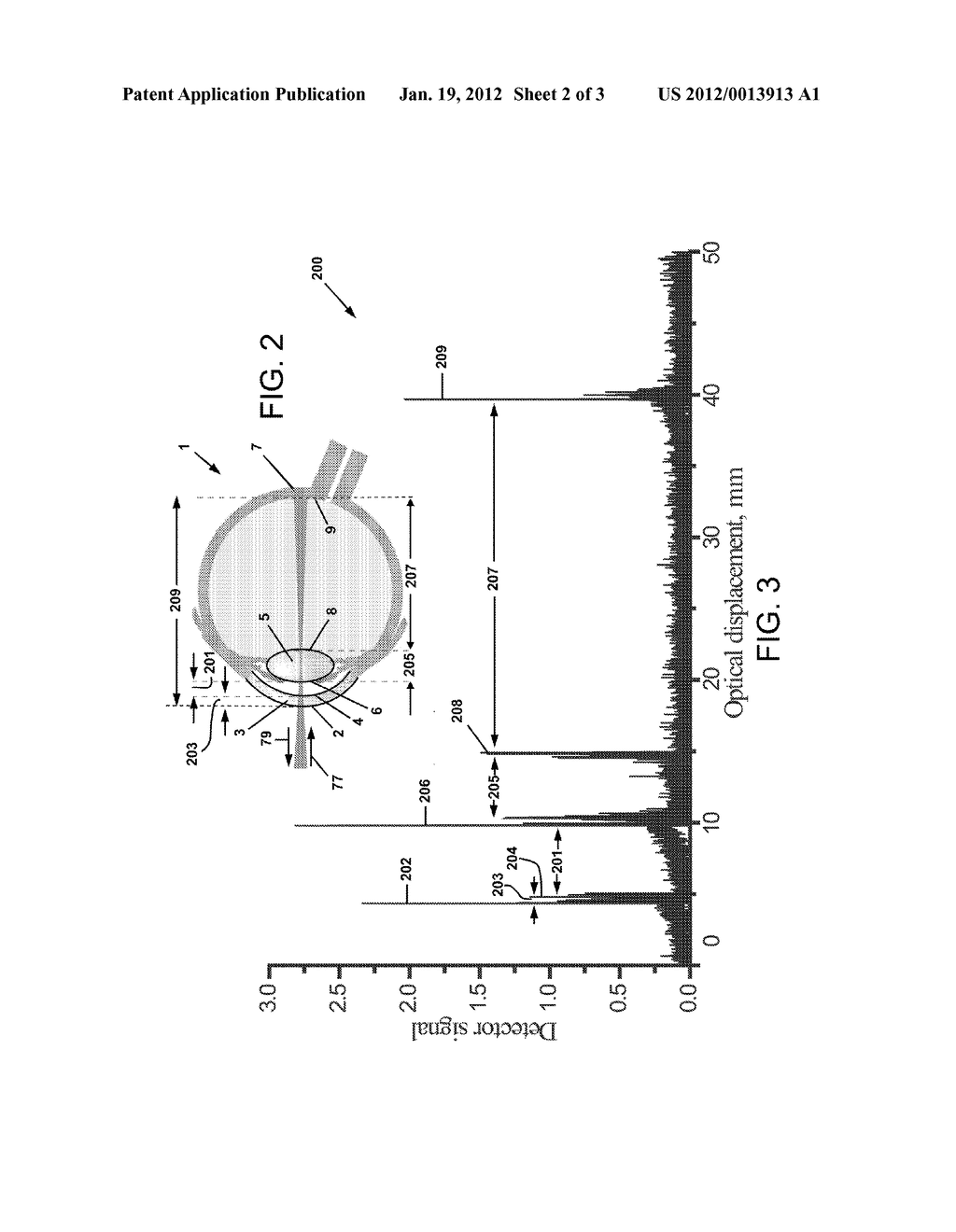 Fiber Based Interferometric Device For Measuring Axial Dimensions Of Eye Diagram A Human Schematic And Image 03
