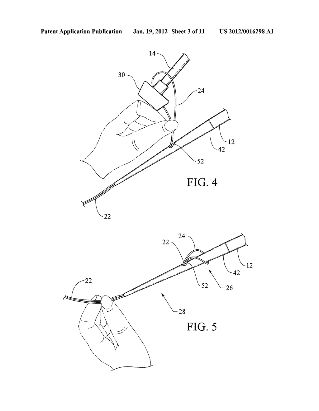 PEG TUBE WITH WIRELESS PULL TIP - diagram, schematic, and image 04