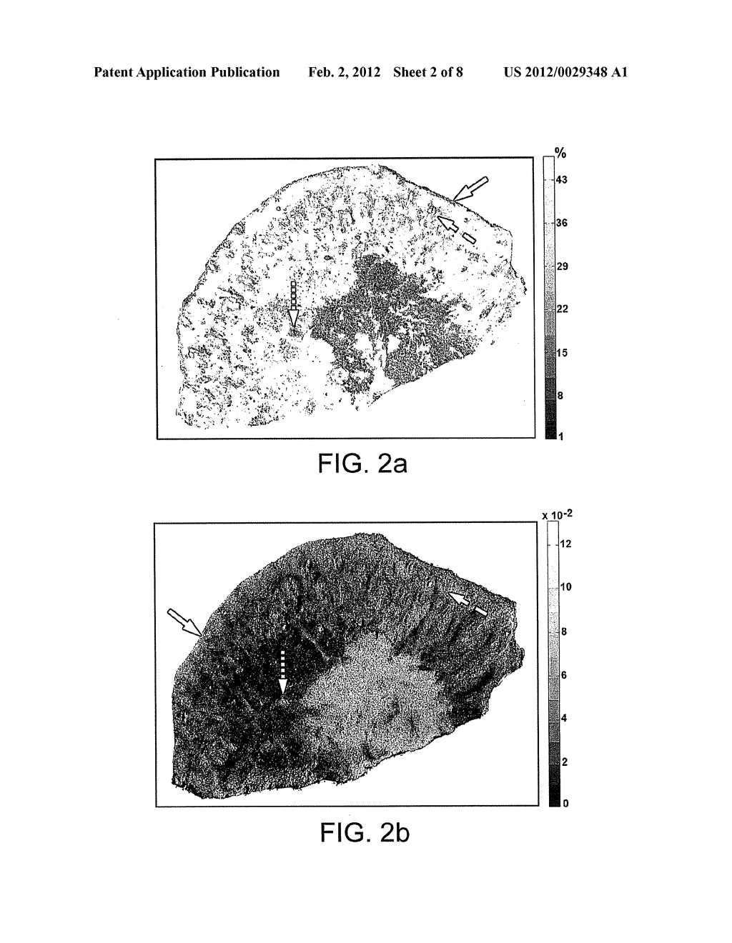 METHOD AND APPARATUS FOR MULTIMODAL IMAGING OF BIOLOGICAL TISSUE - diagram, schematic, and image 03