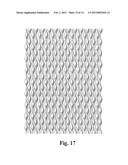 Absorbent Articles with Printed Graphics Thereon Providing A     Three-Dimensional Appearance diagram and image