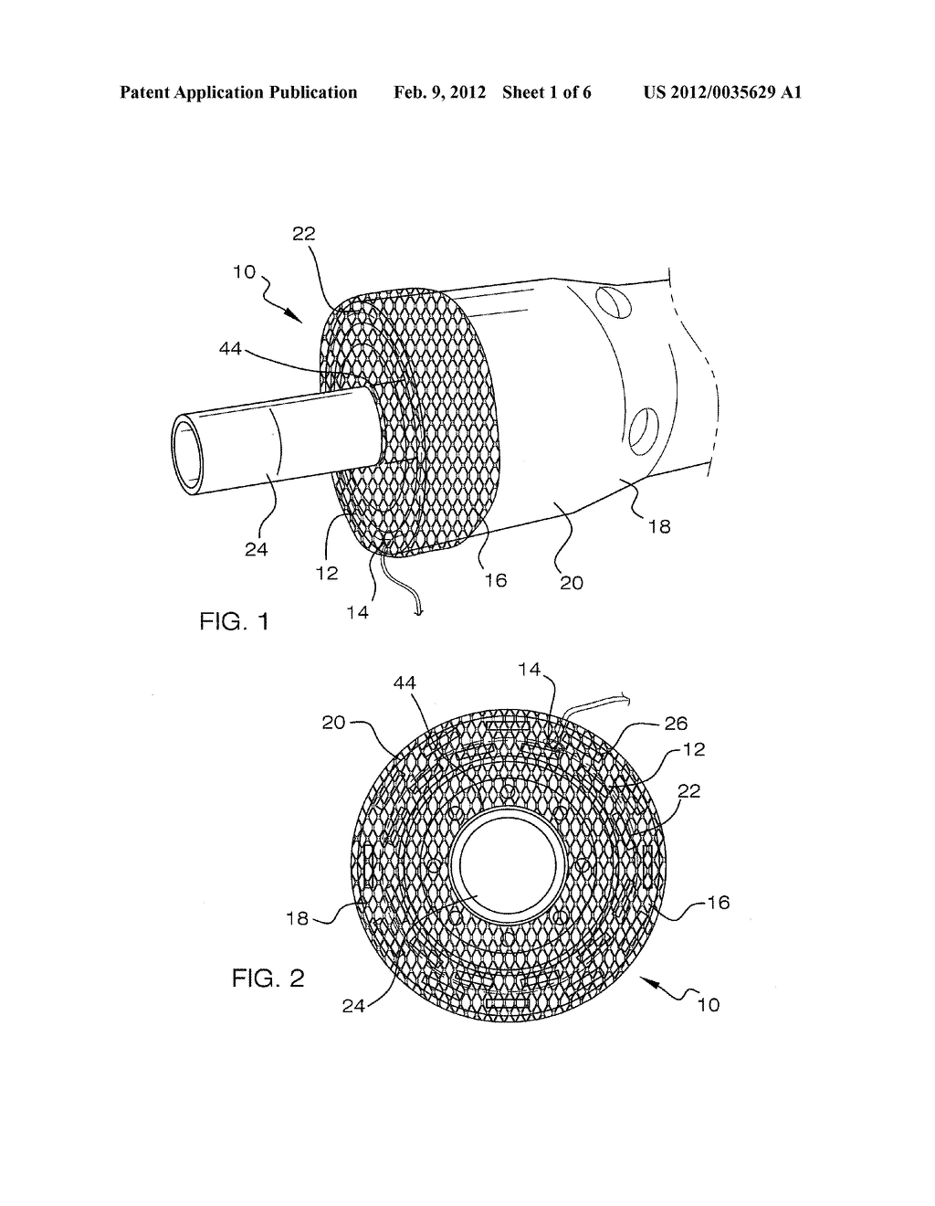 VISCEROTOMY CLOSURE DEVICE AND METHOD OF USE - diagram, schematic, and image 02